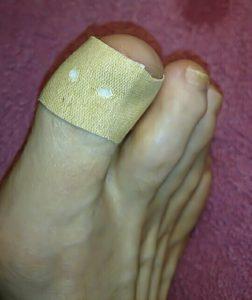 toe-05-plaster